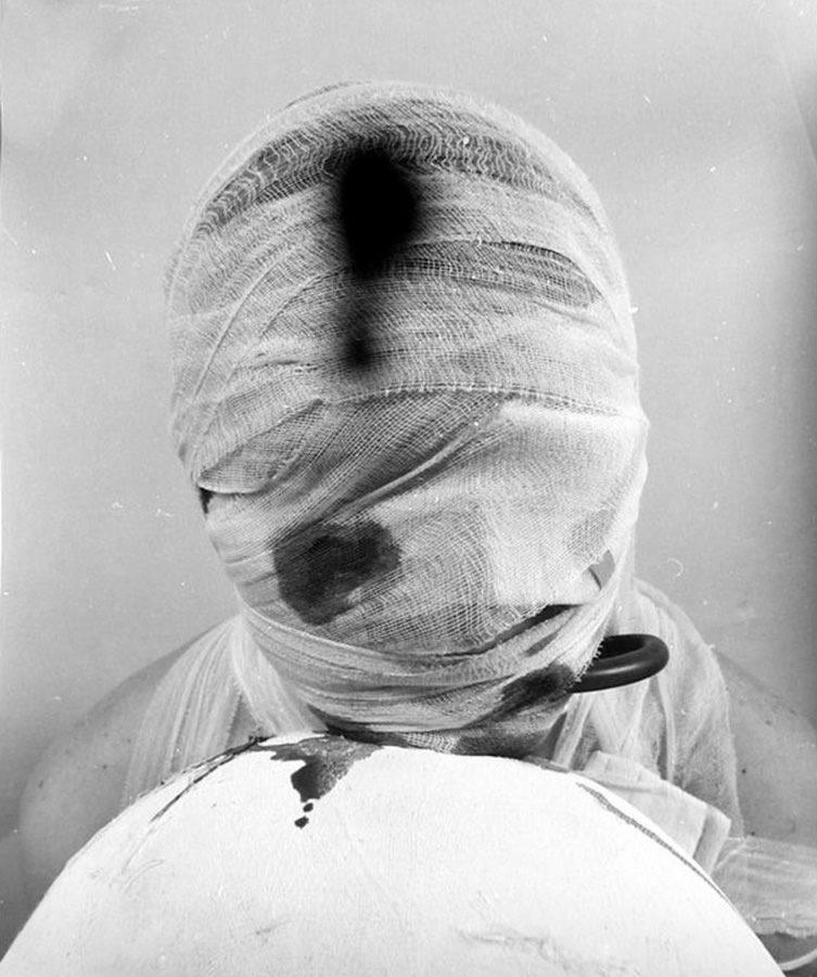 Rudolf Schwarzkogler 2. Aktion, 1965